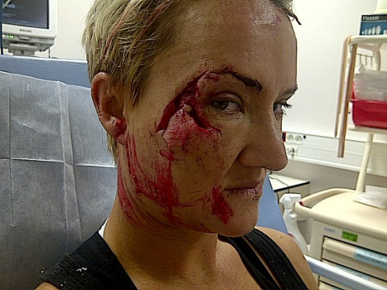 """Although it took some convincing, Keala eventually accepted that this was more than """"just a scratch."""""""